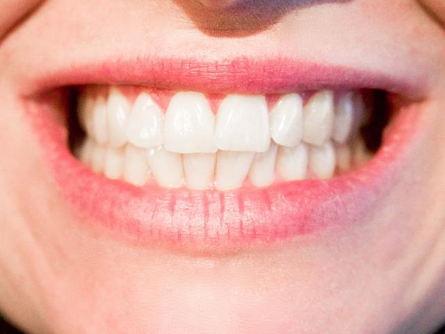białe zęby